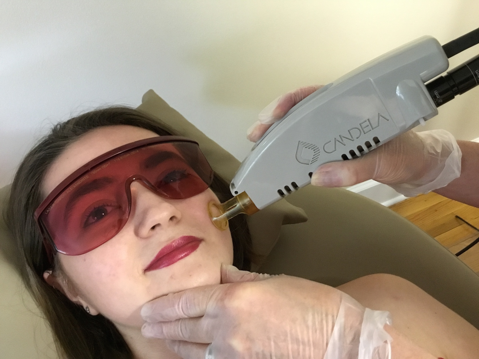 berkshire hair removal laser treatment pittsfield ma 01201
